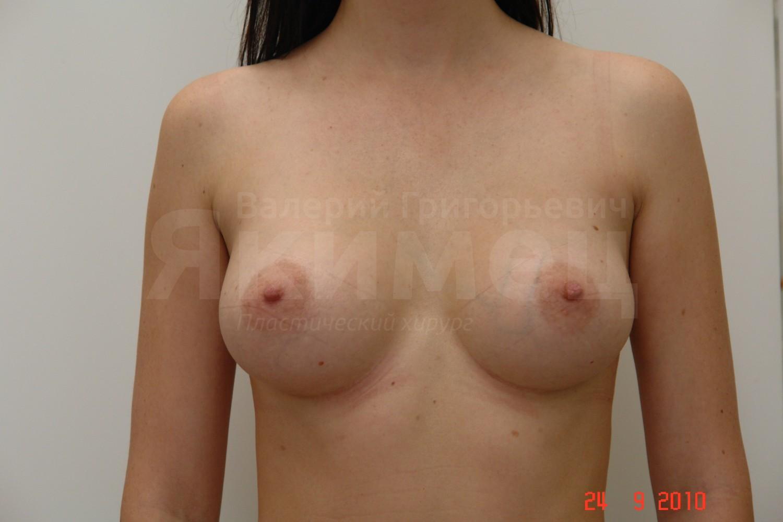 увеличение груди компрессионное белье